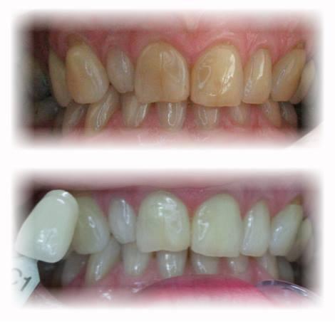 Albirea dinților, mituri și realitate