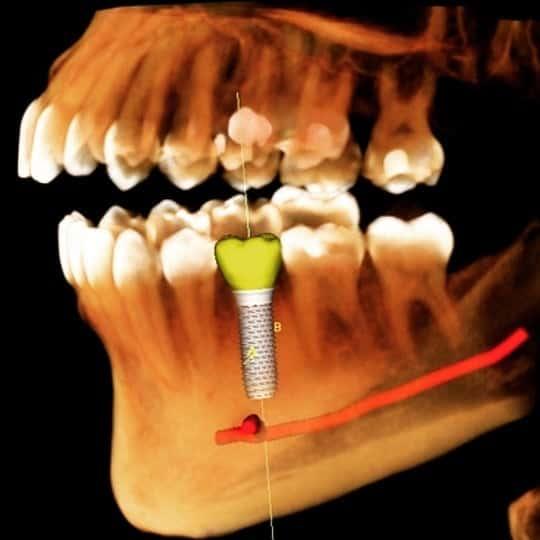 Implantologia ghidată pe calculator